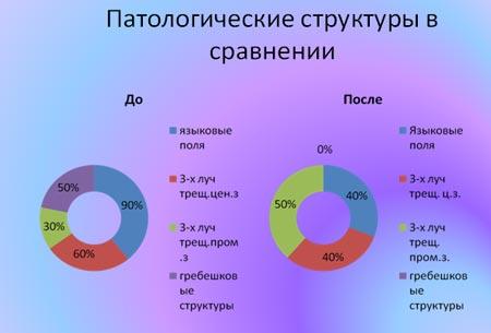 Патологические структуры в сравнении