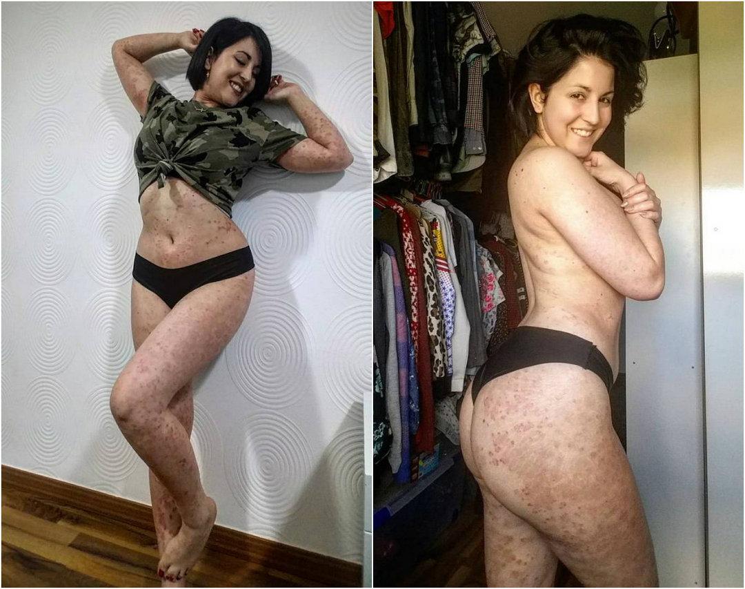 26-летняя девушка прятала свое тело под одеждой, но потом поделилась снимками и стала популярной