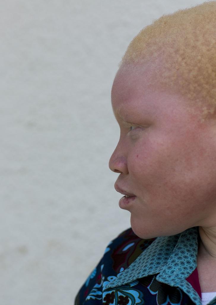 Кулва Лусана, 17 лет. Потеряла руку в 2001 году. Во время нападения узнала одного из преступников —