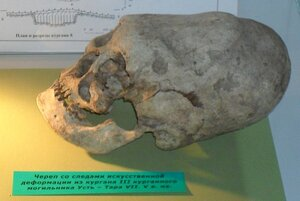 Деформированный череп найденный в древнем могильнике