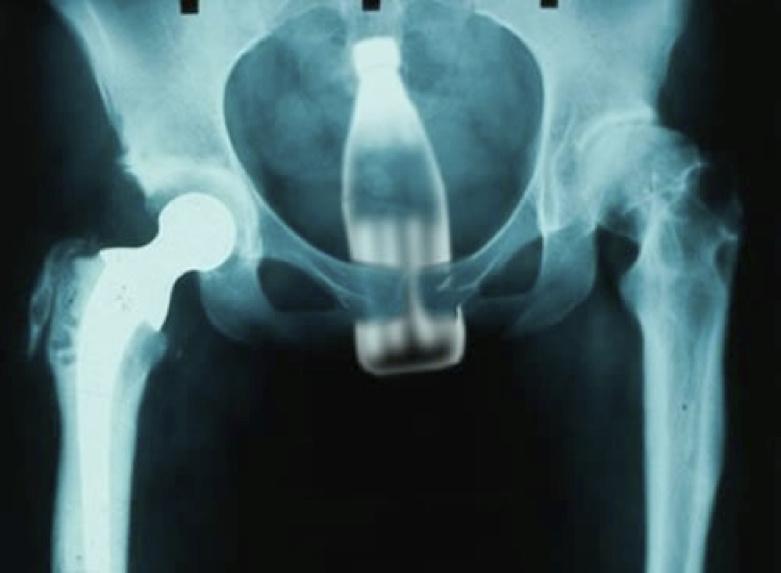 рентген член в жопе