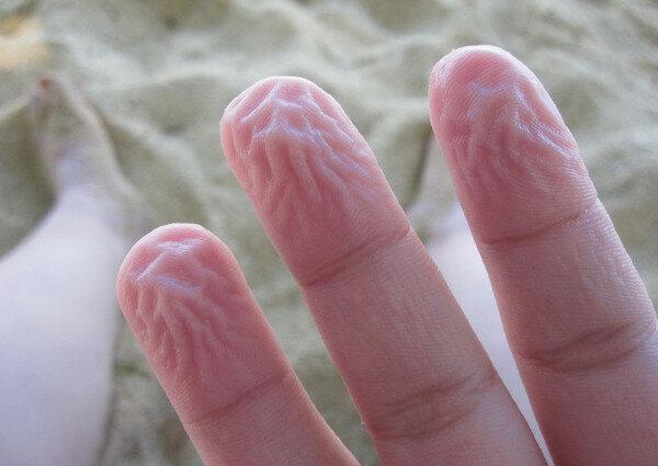 факты о коже человека 9