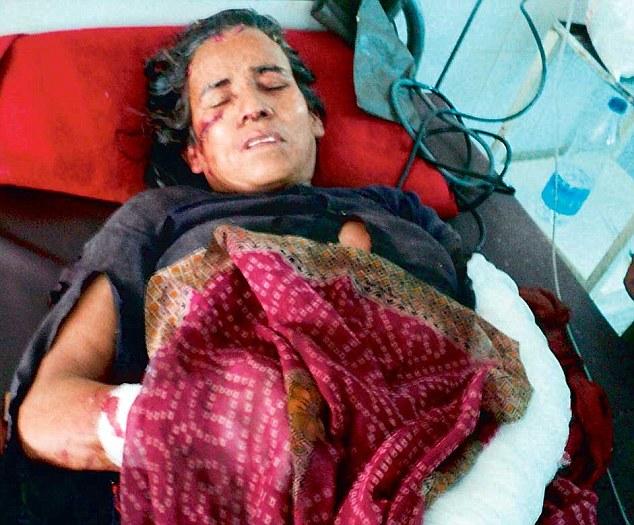 Женщина в Индии победила в схватке с леопардом 0 13090f 28ed9d55 orig