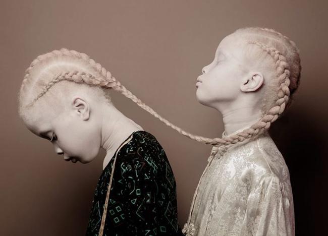 «Эти девочки— своего рода заявление отом, какой разнообразной может быть красота, какой вел
