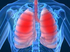 В Находке 3 человека скончались от бактериальной пневмонии