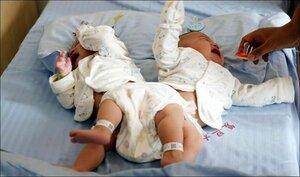 Сиамские близнецы перед операцией по разделению