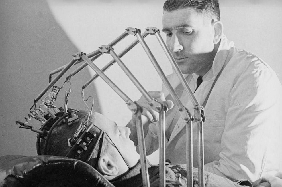 15. Портативный аппарат искусственного дыхания для лечения пациентов на дому, 1955 год: