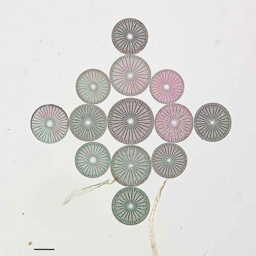 Photograph of Arachnoidiscus diatoms collected in the Bolinas Lagoon in Marin County, California and