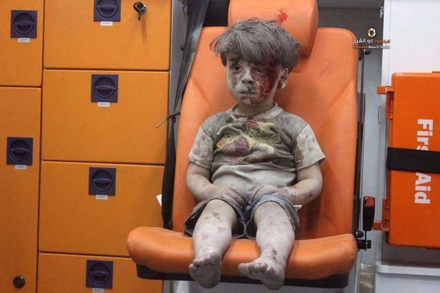 Весь в крови и укрытый пылью: снимок 5-летнего сирийского мальчика после авиаудара по Алеппо всколыхнул Интернет. ФОТО