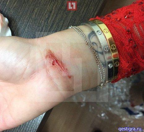 Ольга Бузова порезала руку браслетом