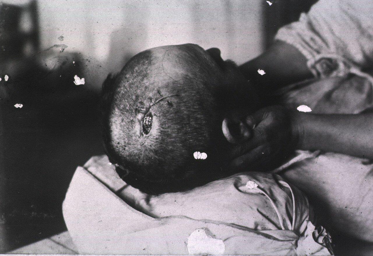 Небольшая открытая рана в верхней части головы