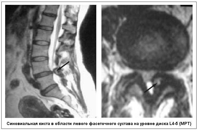 Синовиальная киста сустава в сегменте лечение суставов лучом лазера в домашних условиях
