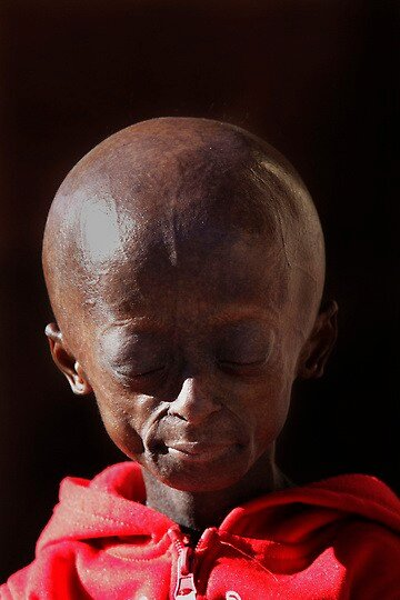 South Africa Progeria Girl