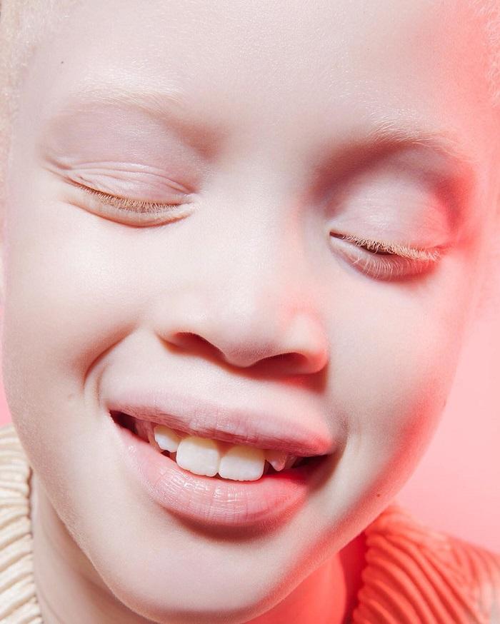 Вероятность рождения ребенка-альбиноса — 1 случай из 17 000.