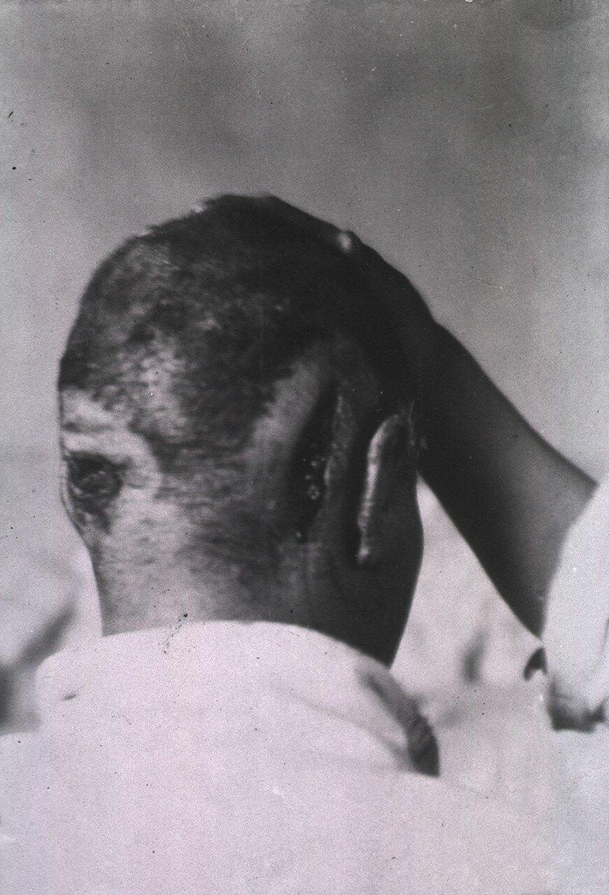Вид двух ран, по одной у каждого уха пациента