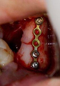 перелом челюсти операция