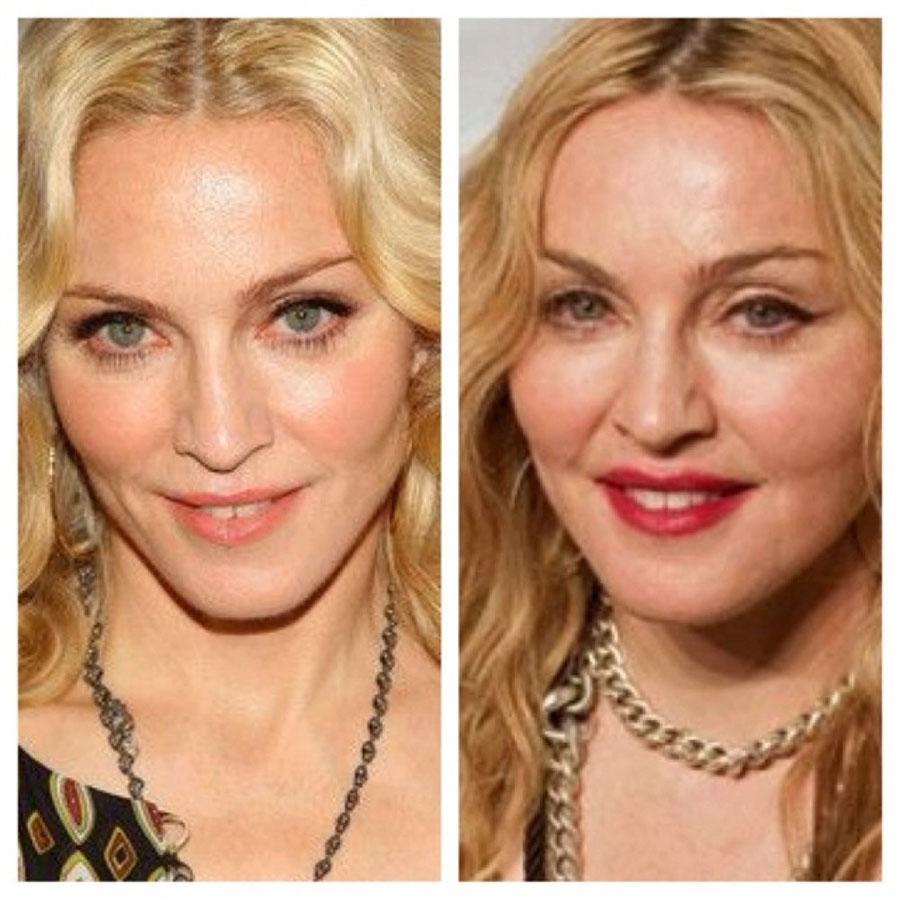 4. Мадонна. Мадонна никогда не была исключительной красоткой, но что-то в ней было, необычные черты,