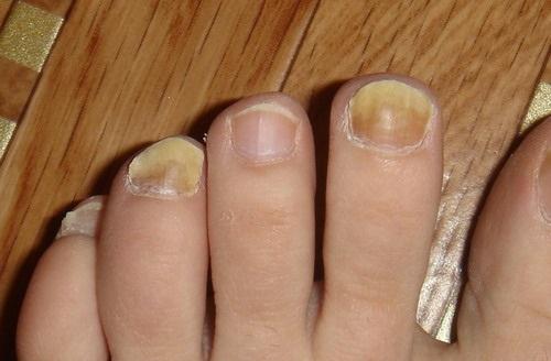 Утолщение ногтей на ногах причины и лечение народными средствами фото