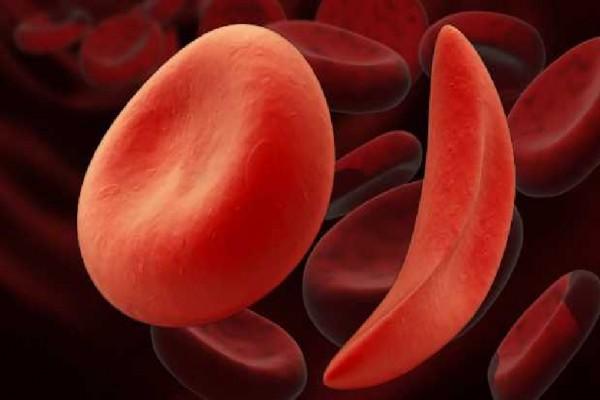 Мед. сотрудники научились при помощи особой генной терапии лечить анемию