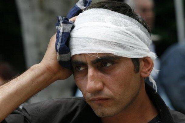 Тбилиси: сегодня - вчера APTOPIX Georgia Opposition