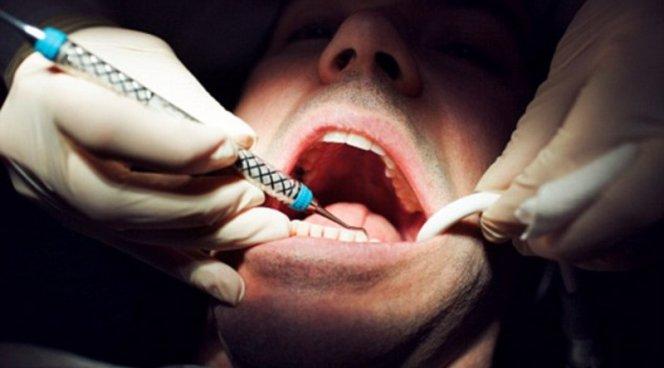 Зубы мудрости нельзя просто так удалять