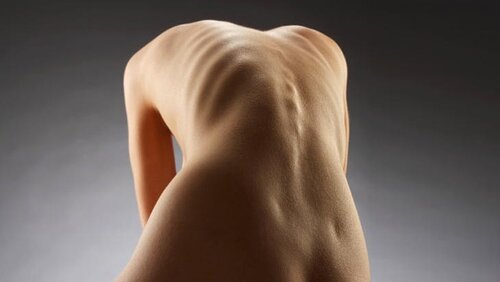В чем причина появления анорексии?