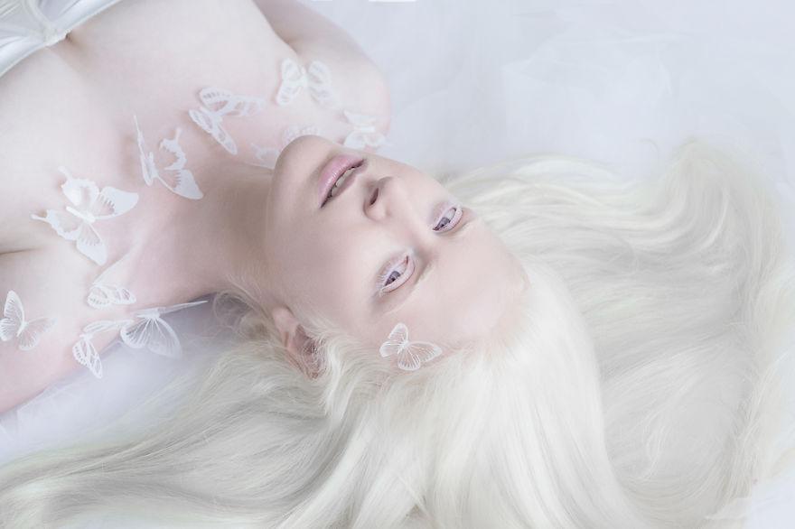Гипнотическая красота альбиносов в фотопроекте Юлии Тайц (11 фото)