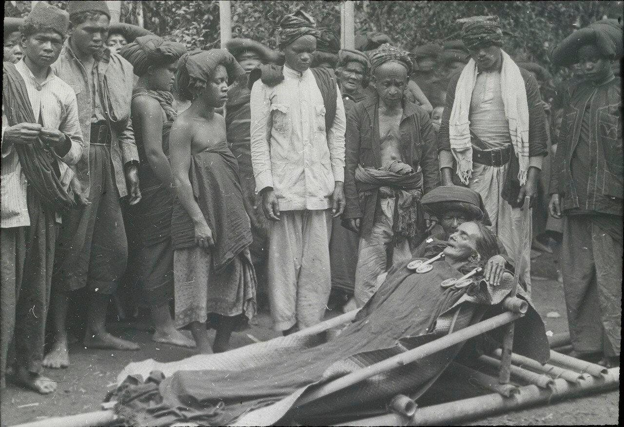 Женщина народности каро на смертном одре