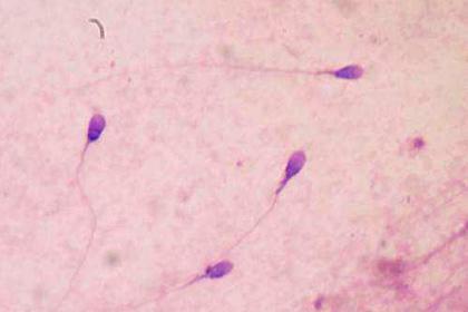 Наука может добиться рождения детей без яйцеклетки