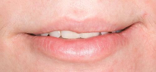 шершавая слизистая малых половых губ озабочены Любишь