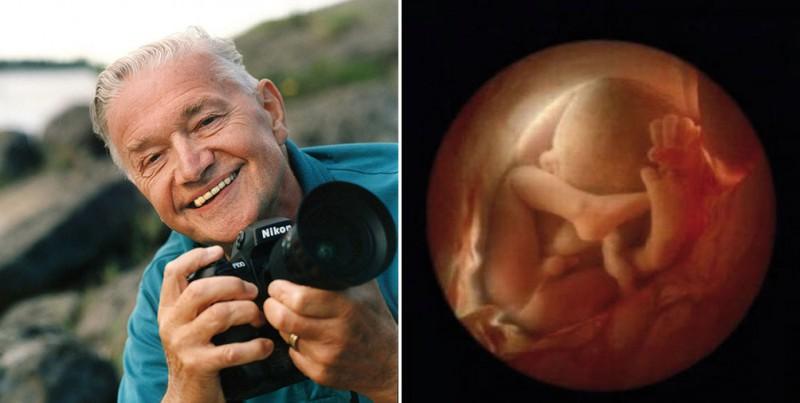 Уникальные кадры: от зачатия до рождения (18 фото)