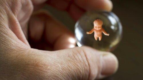 Минздрав России подготовил проект для контроля за абортами
