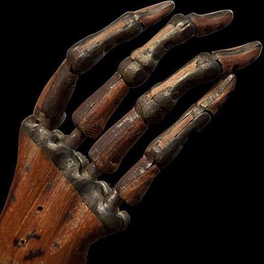 14. Протез кисти, приблизительно 1800 год.