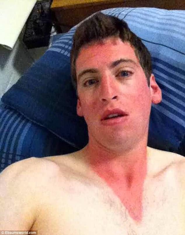 Этот парень благоразумно закрыл от солнца тело, а вот о лице с шеей забыл.