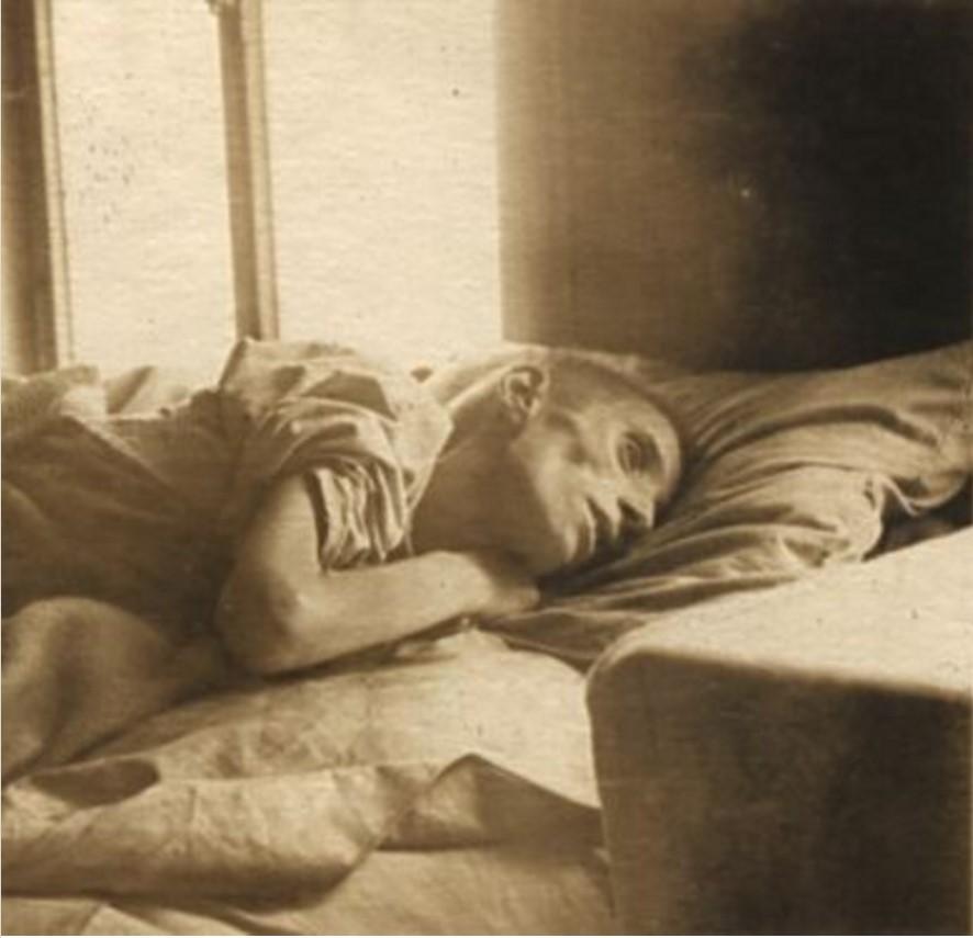 Один из голодающих в своей больничной койке. Марксштадт