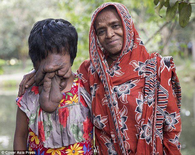 2. Девушка страдает нейрофиброматозом, вызывающим отеки и наросты, искажающие черты лица. 3. Родител