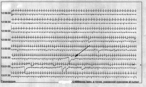 взглянем на кардиограмму.