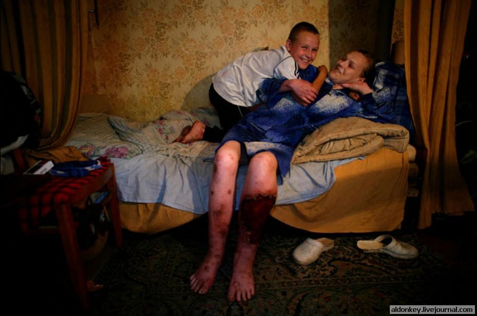 415 Украина секс, наркомания, бедность и СПИД (Часть 1). Украина