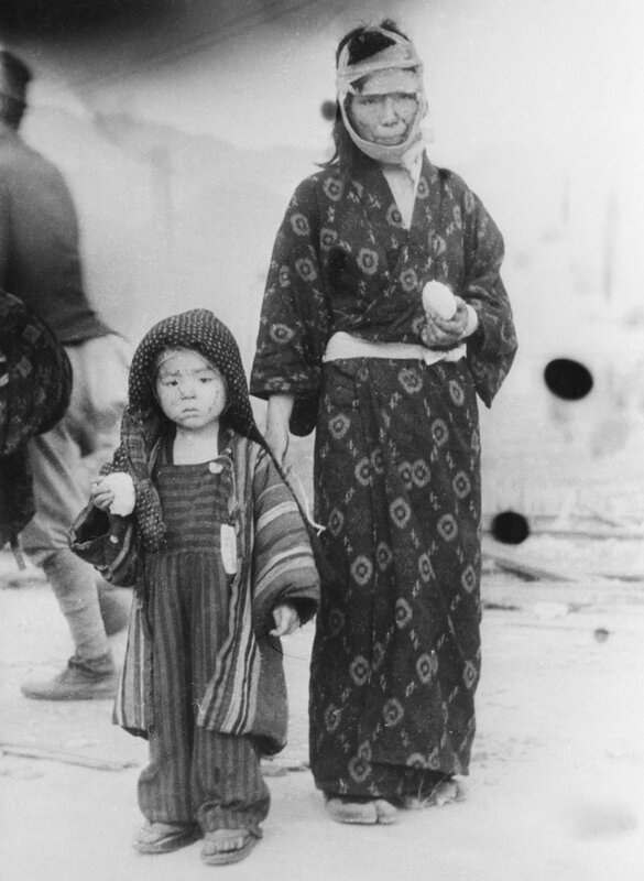 Victims of the Bombing of Nagasaki Standing in a Street