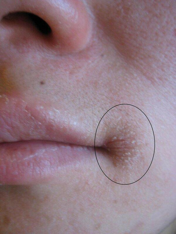 аллергия-на-косметику2.jpg