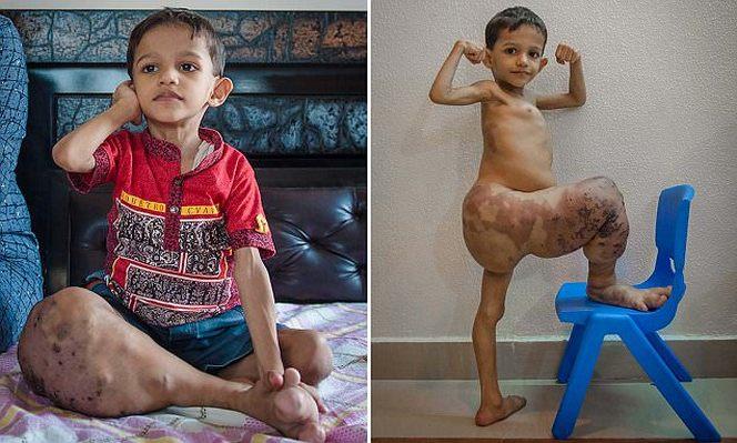 Редкая болезнь увеличила ногу ребенка в четыре раза