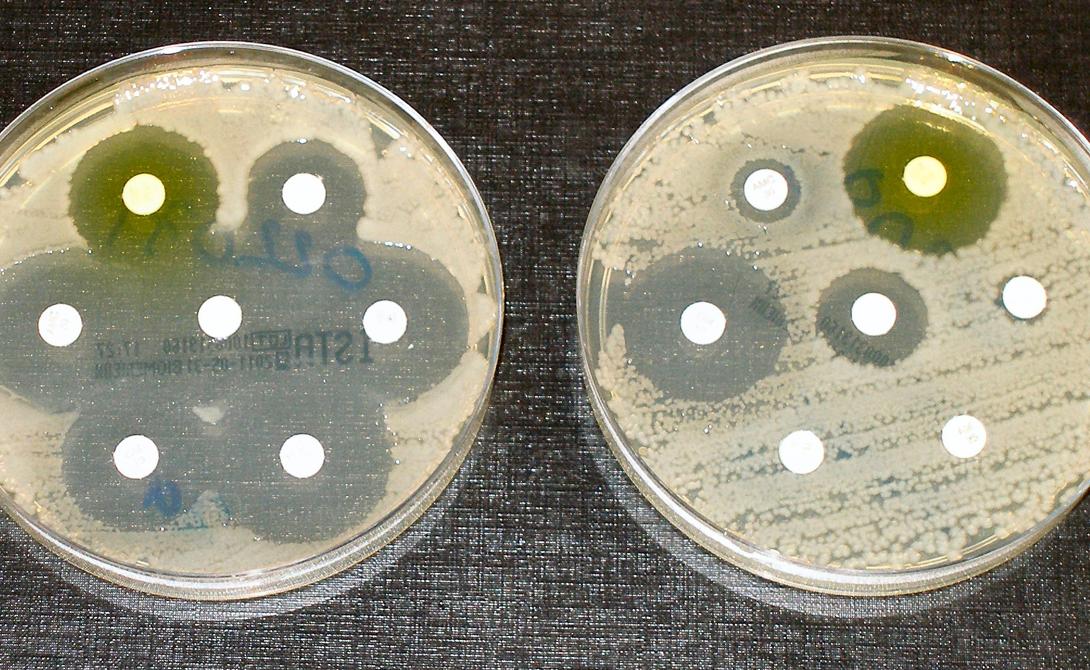 Вирусы, вроде испанского гриппа не имеют монополии на уничтожение человечества. Те же бактерии тоже