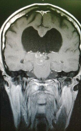 Опухоль головного мозга в области  третьего желудочка    Rentgenolog.info