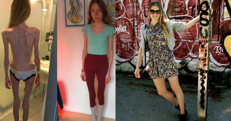 Девушка весила 31 килограмм, пока не взялась за ум