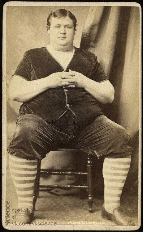 Сто лет назад этот мужчина считался настолько толстым, что его показывали в цирке