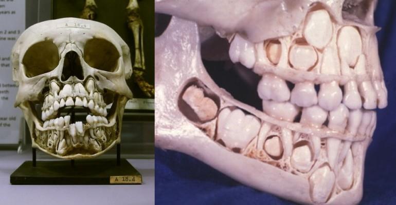 Рентген зубы детей картинки