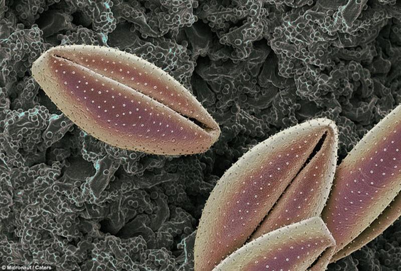 8. Пыльца с лилии. Аллергия на пыльцу появляется у многих людей. Клетки в носу и глазах выпускают ги