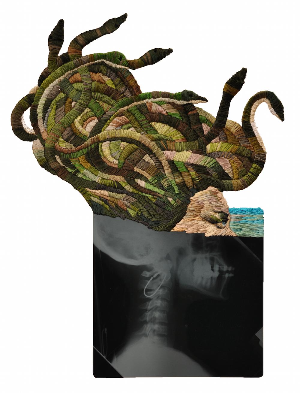 """""""Medusa Profile"""""""
