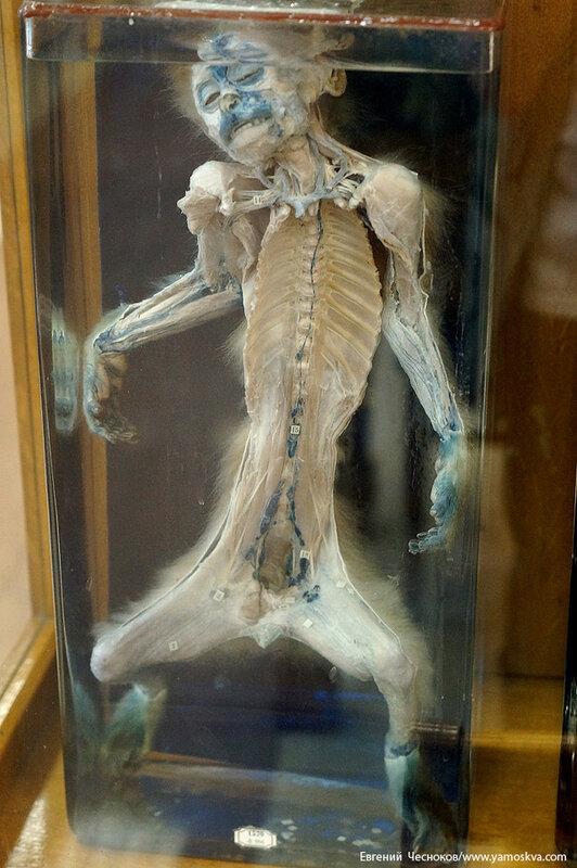 Лето. МГМУ. Музей анатомии. 27.08.15.63..jpg