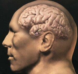 Уникальные особенности мозга Эйнштейна